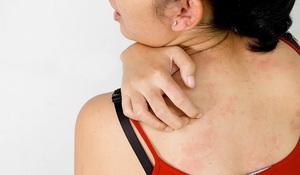 Лечение прыщей на спине - Фото №1