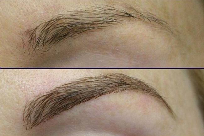 brovy Мезотерапия волосистой части головы и бровей