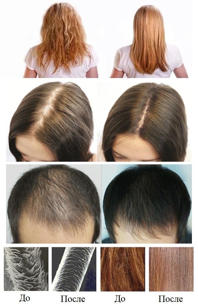 volysy Лечение волос