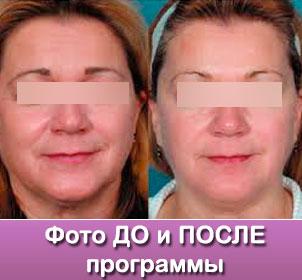 tonusdp Программа Повышение тонуса кожи
