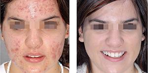 ugri3 Лечения прыщей и пигментных пятен без частых визитов к косметологу