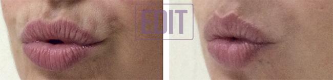 btx4 Инъекции ботокса (ботулотоксина)