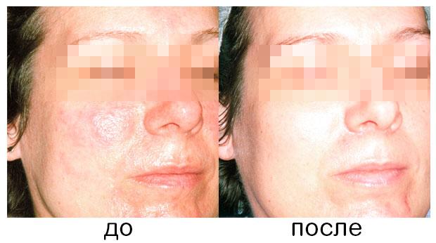 BeforeAfter pores Устранение расширенных пор по Danne