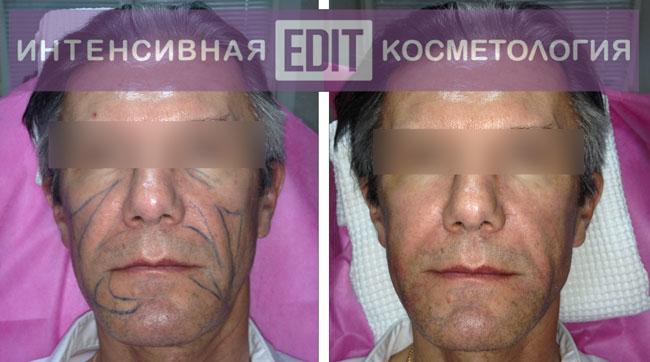 do posle biorevolumetria1 Мастер класс по биореволюметрии: эффект омоложения длится 2 года
