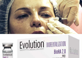 Мастер-класс в Клинике Эдит по препарату Evolution Renne Bio-med