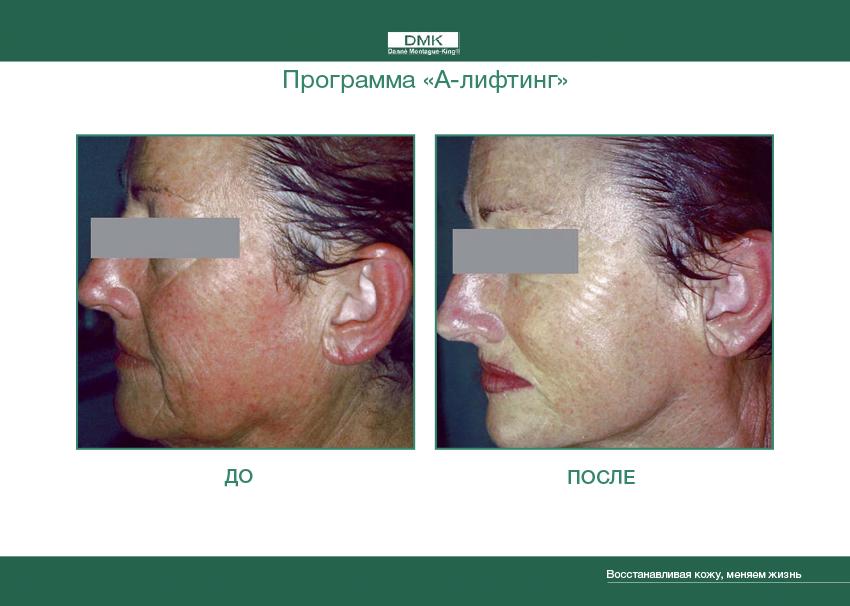 alift doposle Программа А лифт от Данне   нехирургический лифтинг овала лица