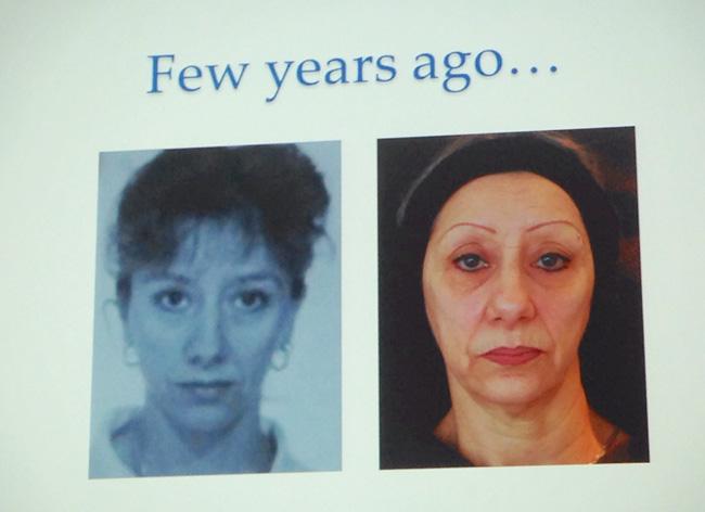 kannes1 Международный съезд по эстетической медицине Face2f@ce в Каннах