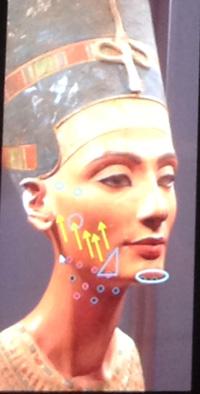 kannes11 Международный съезд по эстетической медицине Face2f@ce в Каннах