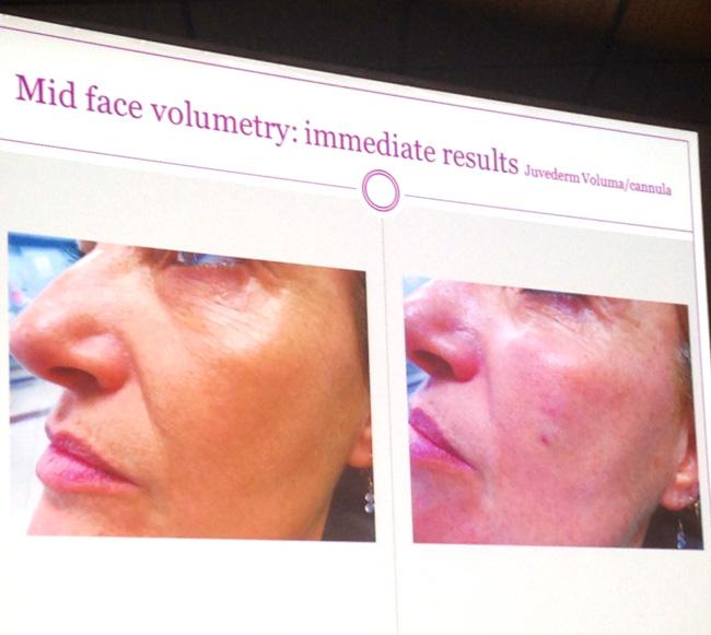 kannes4 Международный съезд по эстетической медицине Face2f@ce в Каннах