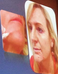 kannes8 Международный съезд по эстетической медицине Face2f@ce в Каннах