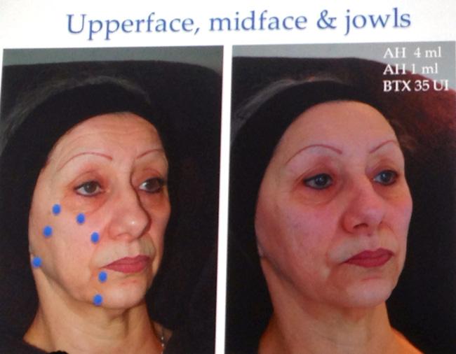 kannes9 Международный съезд по эстетической медицине Face2f@ce в Каннах