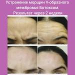 13549472 1188845751160026 2117191489 n 150x150 Петраш Анжела Антоновна