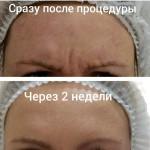 14334809 1685538645098809 5437538599438385152 n 150x150 Петраш Анжела Антоновна