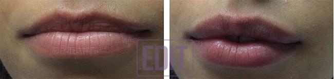 1561 Идеальные губы