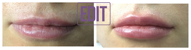 23971 Контурная пластика губ