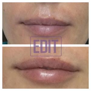 43 300x300 Идеальные губы