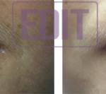 65421 150x133 8 уникальных точек губ
