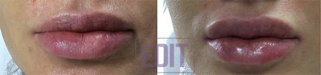 9511 Контурная пластика губ