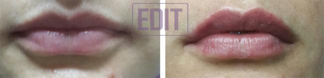 lips11 Контурная пластика губ