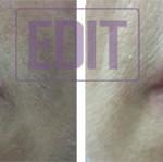 lips21 150x149 8 уникальных точек губ