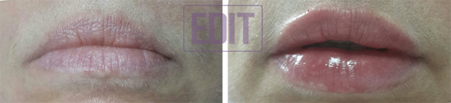 lips21 Идеальные губы