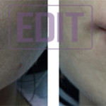 lips31 150x150 8 уникальных точек губ