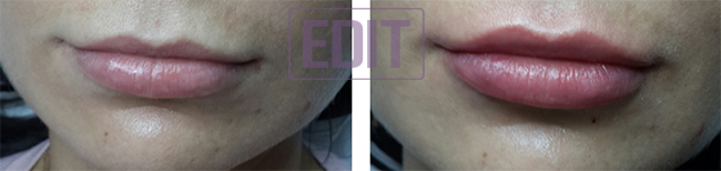 lips31 Идеальные губы