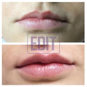 petrash11 300x298 Контурная пластика губ