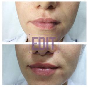 petrash12 300x298 Идеальные губы