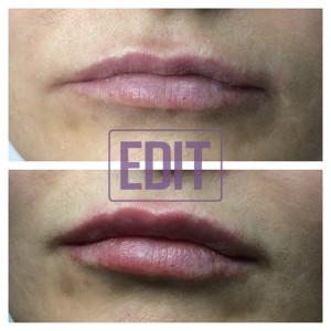 petrash4 300x300 Идеальные губы