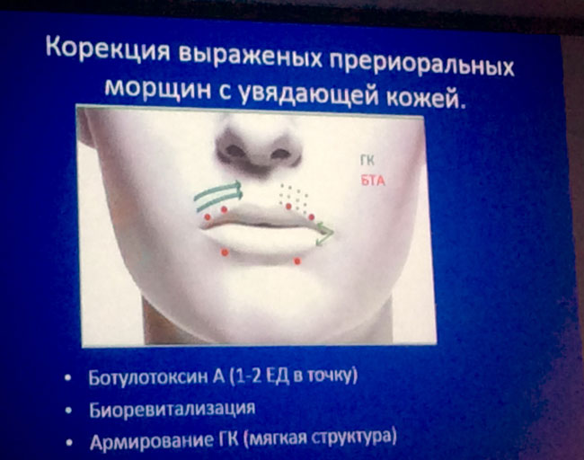 2 5 Новости с международного саммита по эстетической медицине