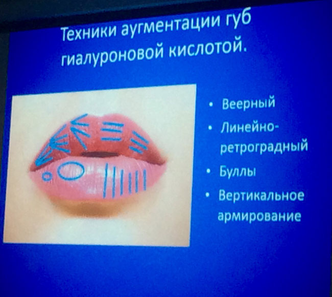Новости с международного саммита по эстетической медицине