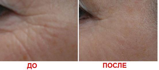 2 Мезотерапия век для молодой светящейся кожи вокруг глаз   Ваш новый New Look!
