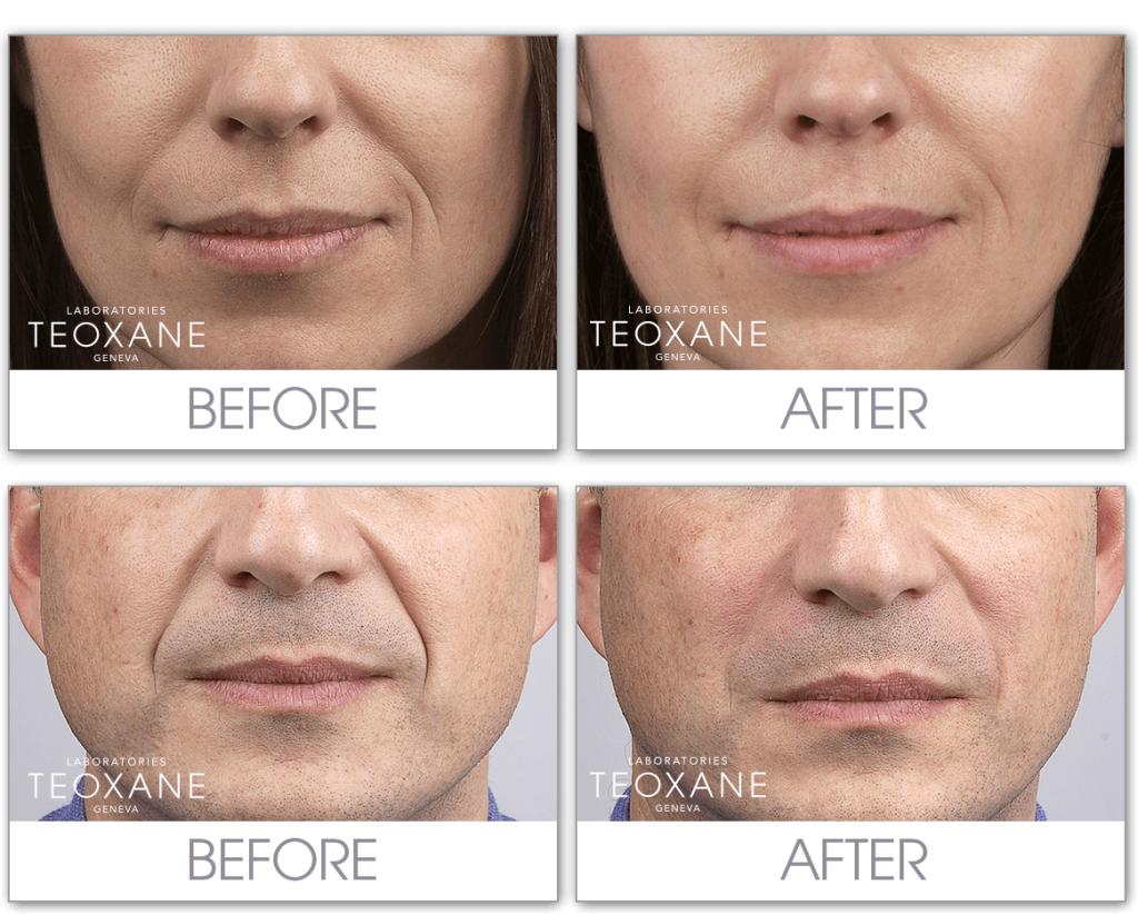Биоревитализация Redensity I (Teosyal, Швейцария) - быстрое восстановлени кожи с эффектом сияния