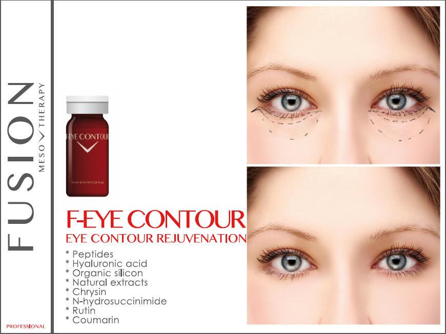 image Мезотерапия век для молодой светящейся кожи вокруг глаз   Ваш новый New Look!