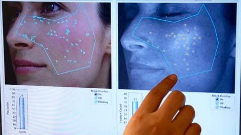 Мезотерапия век для молодой светящейся кожи вокруг глаз - Ваш новый New Look!