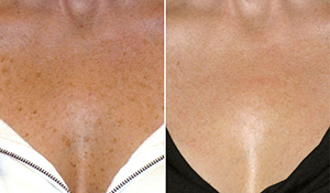 654 Мезотерапия против пигментных пятен   новое решение для улучшения цвета лица