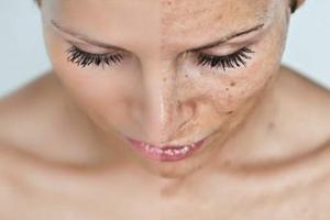 pigment Мезотерапия против пигментных пятен   новое решение для улучшения цвета лица