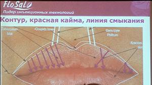 image2 Всеукраинский форум Улыбка Джоконды