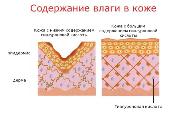 Биоревитализация груди