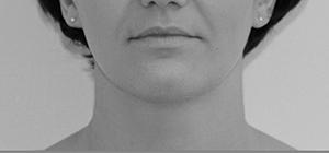 Image 9 Новые возможности омоложения и улучшения форм лица с филлер пати в клинике Эдит