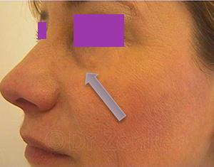 Image10 Новые возможности омоложения и улучшения форм лица с филлер пати в клинике Эдит