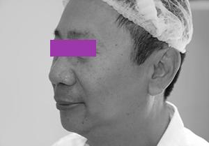 Image5 Новые возможности омоложения и улучшения форм лица с филлер пати в клинике Эдит