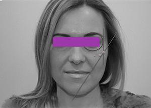 Image8 Новые возможности омоложения и улучшения форм лица с филлер пати в клинике Эдит