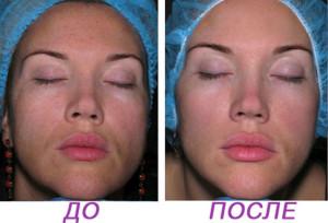 MX6 300x204 Биоревитализант для молодой жирной кожи