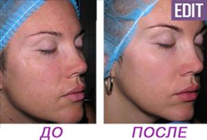 MX7 300x204 Биоревитализант для молодой жирной кожи