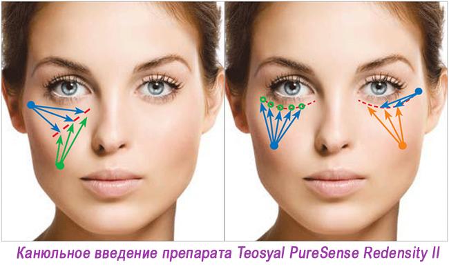 Teosyal 1.2 Молодость глаз за одну процедуру