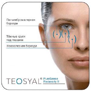 Teosyal Молодость глаз за одну процедуру
