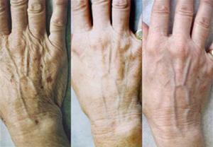 Тело после 40 лет - следите за руками!