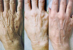 hands 3 Тело после 40 лет   следите за руками!